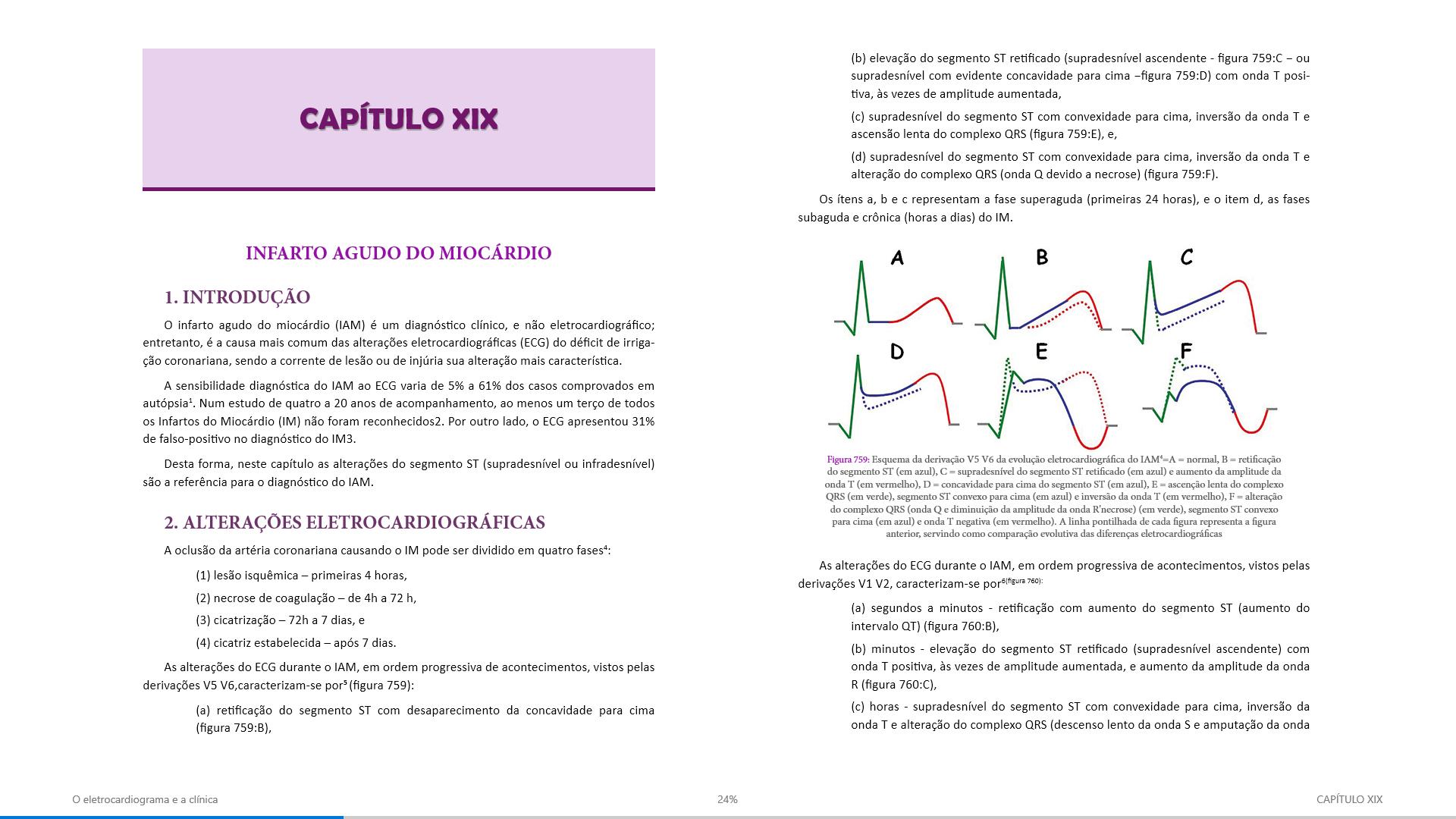 O eletrocardiograma e a clínica3 - Eduardo Machado Andréa & Bruno Rustum Andréa
